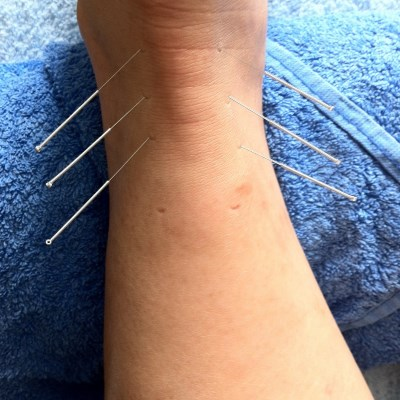image of patient being treated with acupuncture